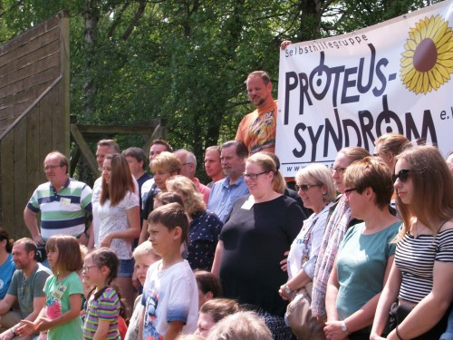 Selbsthiffe-Gruppe Proteus-Syndrom e.V. - Familienkonferenz in Plothen 2018